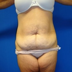 Manhattan abdominoplasty before 12